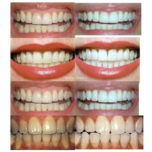 teeth whitening costs before and after