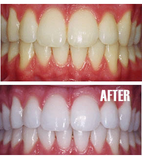 How to Whiten Teeth Fast - The Best Solutions