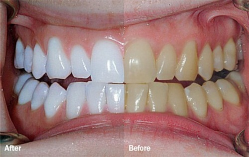How do Teeth Whitening Products Work?