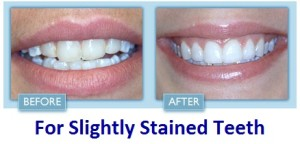 slightly stained teeth