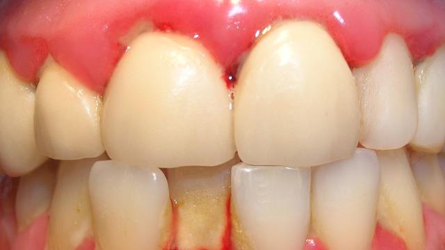 Gingivitis - Causes, Symptoms, Prevention, and Treatment