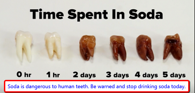 soda and teeth