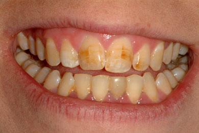 stained teeth due to poor oral hygiene