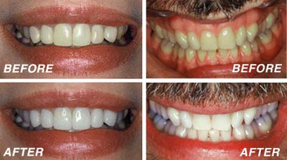 How to whiten teeth at home
