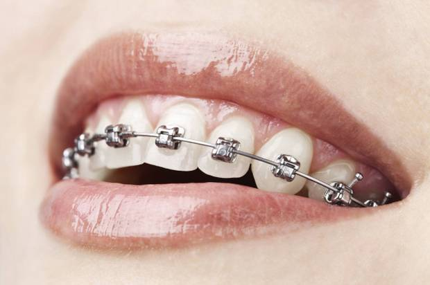 How to Whiten Teeth With Braces On - 2 of the Best Solutions