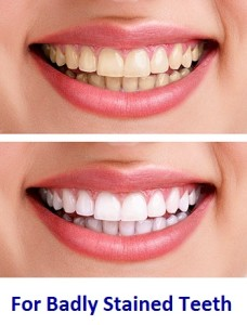 Best Teeth Whitening Strips That Really Work Must Read Reviews