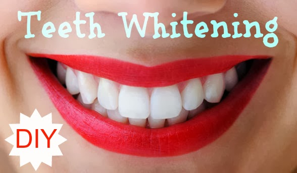 DIY Teeth Whitening - 3 Recipes to Whiten Your Teeth Naturally