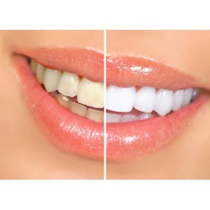 teeth whitening strips results