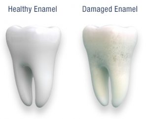 Complete Guide to Keeping Your Tooth's Enamel in Great Shape