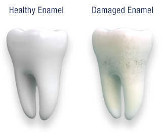 healthy vs damaged enamel