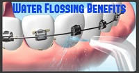 benefits of water flossing