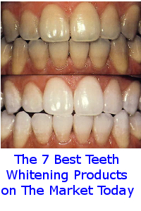 Best Teeth Whitening Products Best Whitening Strips Best Kits