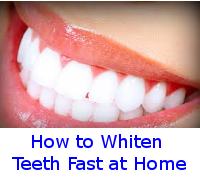 whiten teeth fast