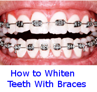 whitening teeth with braces